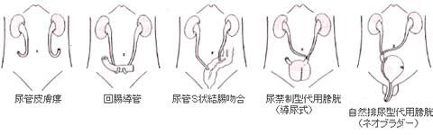 後 むくみ 射精 排尿時、射精時に尿道に痛みが…原因は?